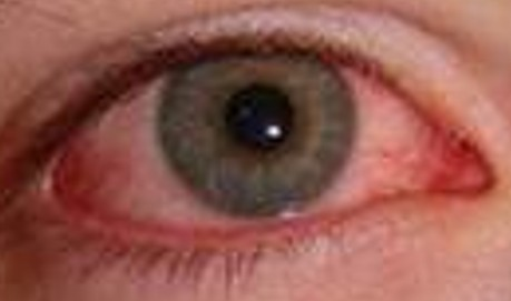 Herpes simplex is a very common virus affecting the skin, mucous membranes, nervous system, and the eye 2