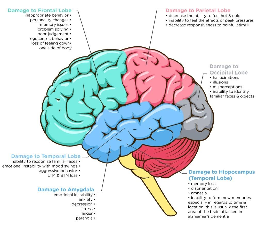 Dementia: Understanding Functional Loss in Your Resident