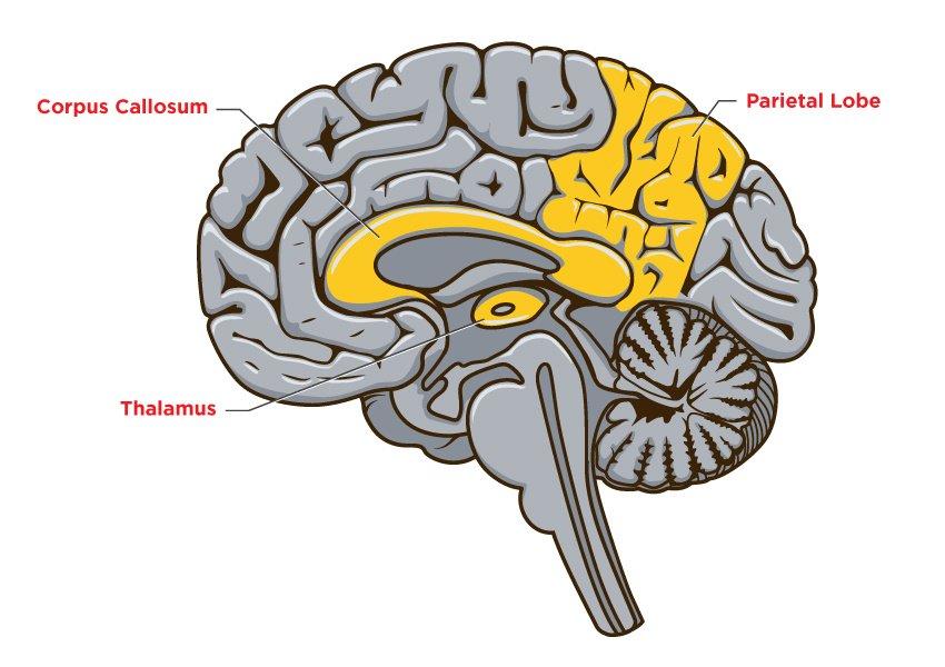 Dementia-Brain-No5.jpg