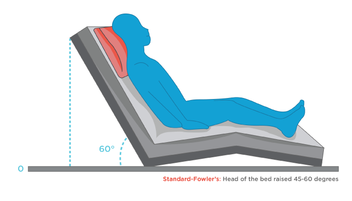 Fowler S Position Beyond The Bed