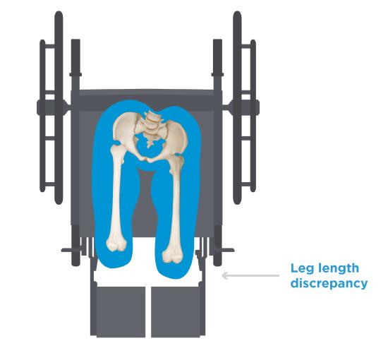 Pelvic-Rotation-Leg-Length.png