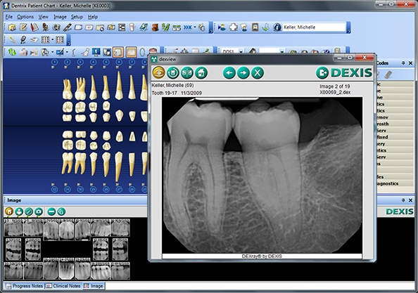 Dentrix chart   DEXview image