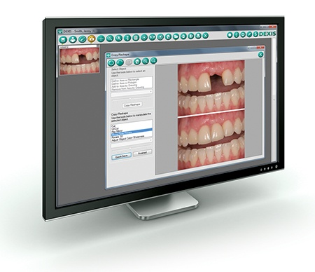 DEXcosmetic DEXIS software