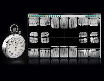 Time Savings through Digital X ray resized 600