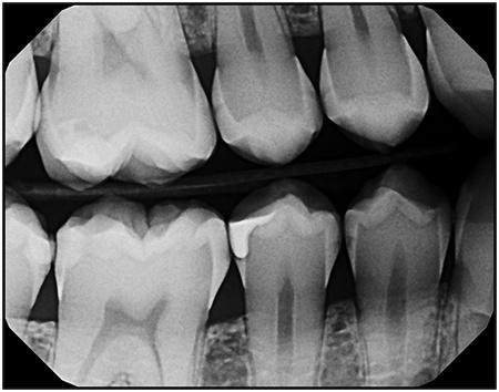 DEXIS X-ray